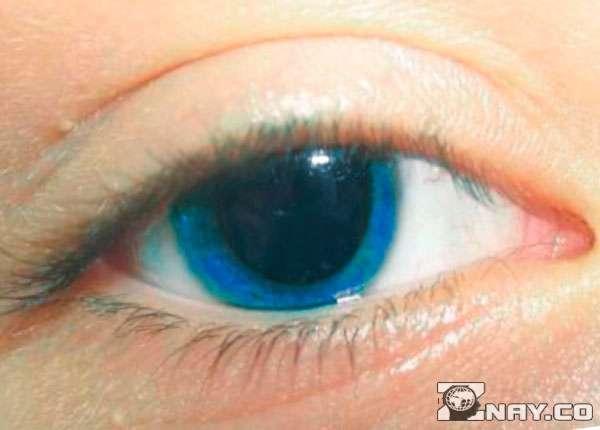 Глаза умершего - зрачки