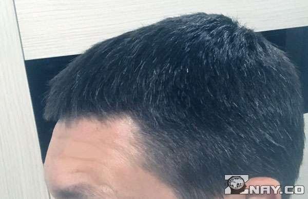 У парня потеря пигментации волос
