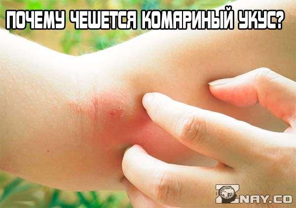 Почему чешется комариный укус?