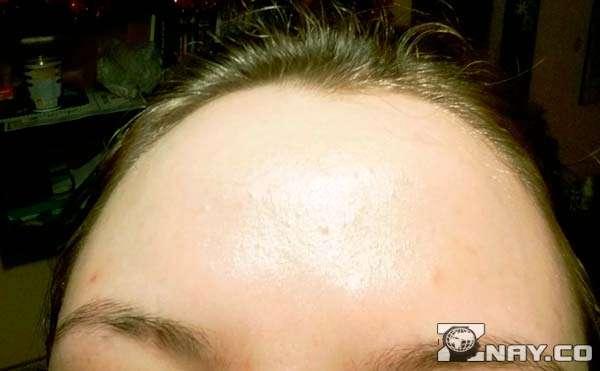 Сальная кожа верхней части лица