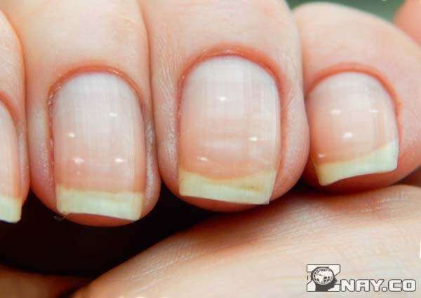 Белые точки на пальцах