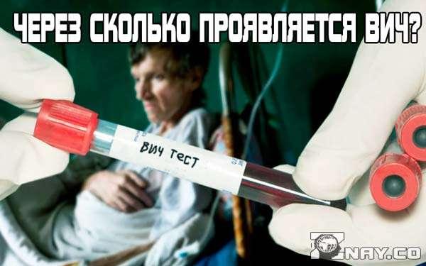 Через сколько проявляется ВИЧ?