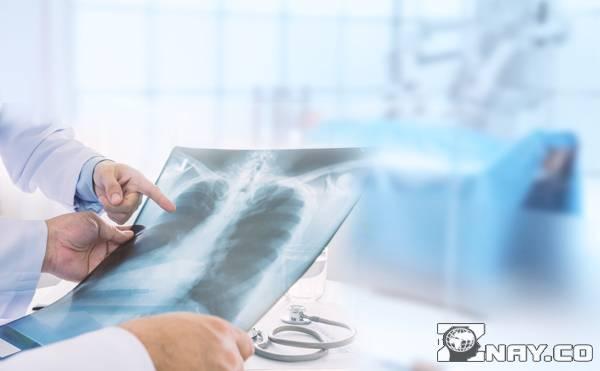 Хризотиловый асбест железа в легких